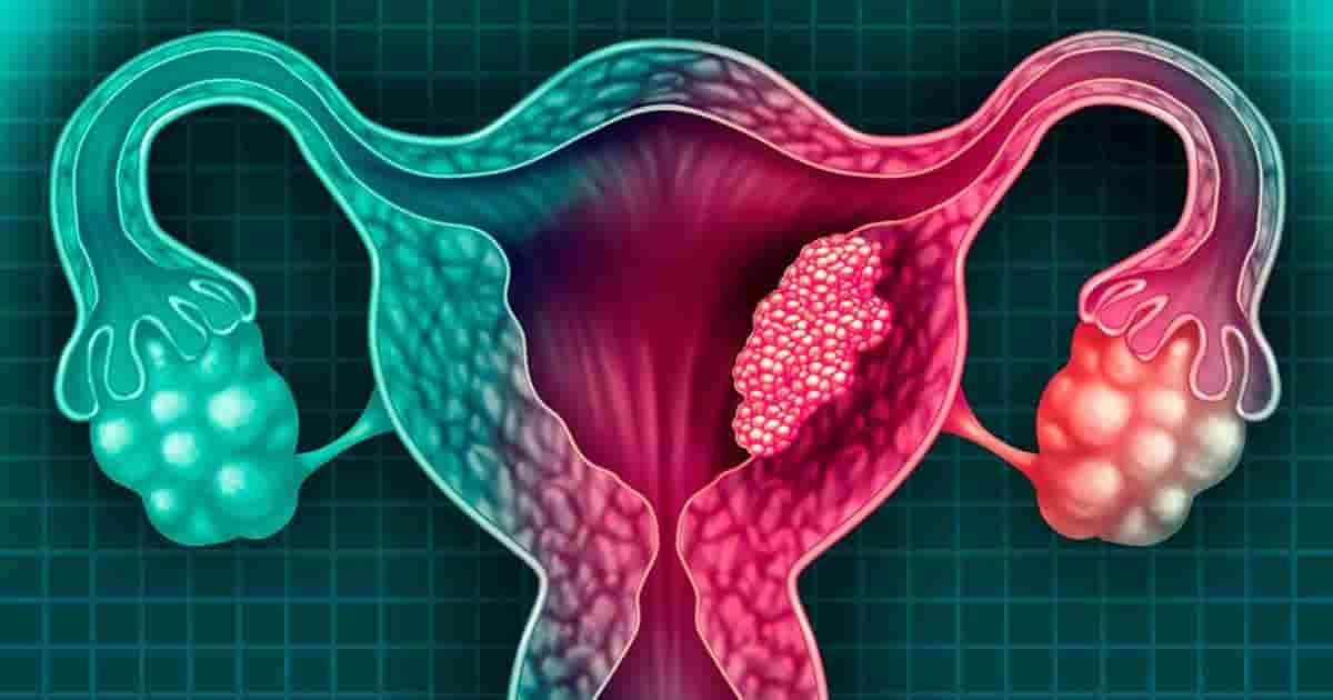 Cáncer de útero síntomas